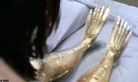 Bionic_legs